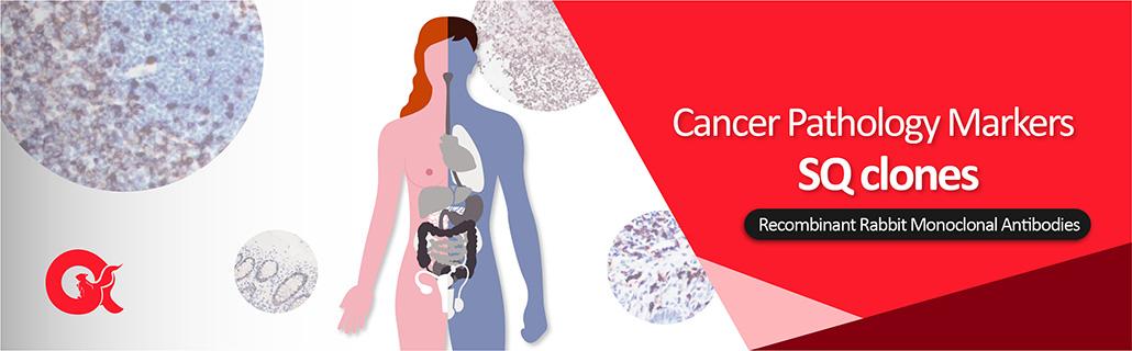 Cancer pathology markers (arigo SQ clones)